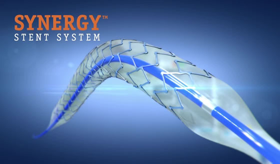Synergy Stent System